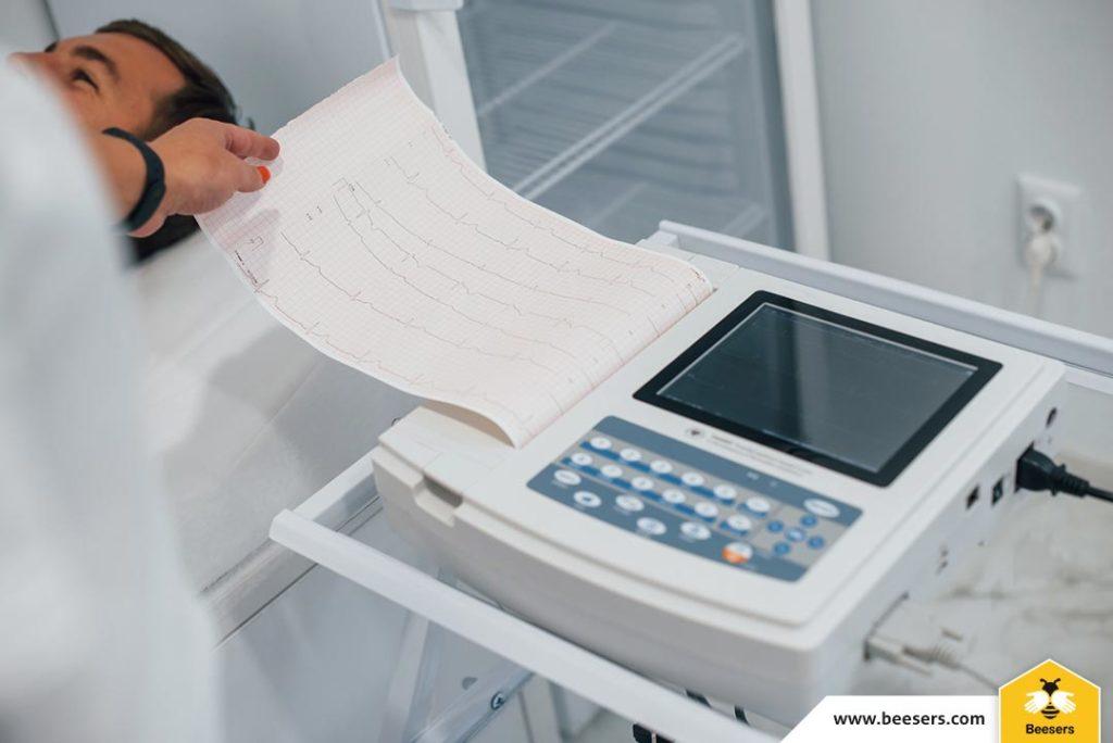 Tot ce trebuie să ştii despre electrocardiogramă (EKG)